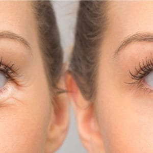 How to Get Rid of Under Eye Bags With Surgery?