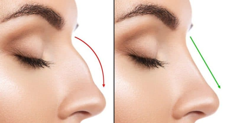 Revision Rhinoplasty for Perfect Nose Surgery Correction