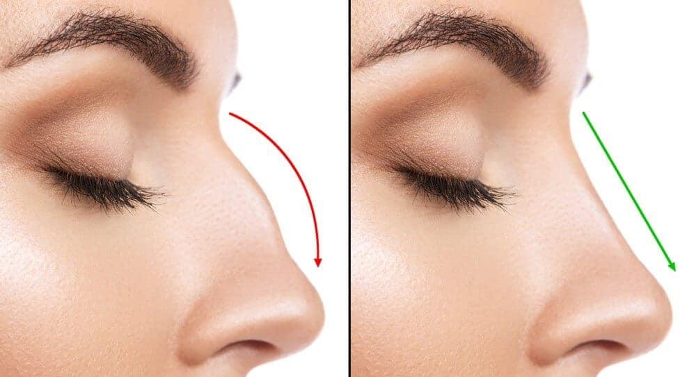 A Guide To Revision Rhinoplasty For Perfect Nose Surgery!