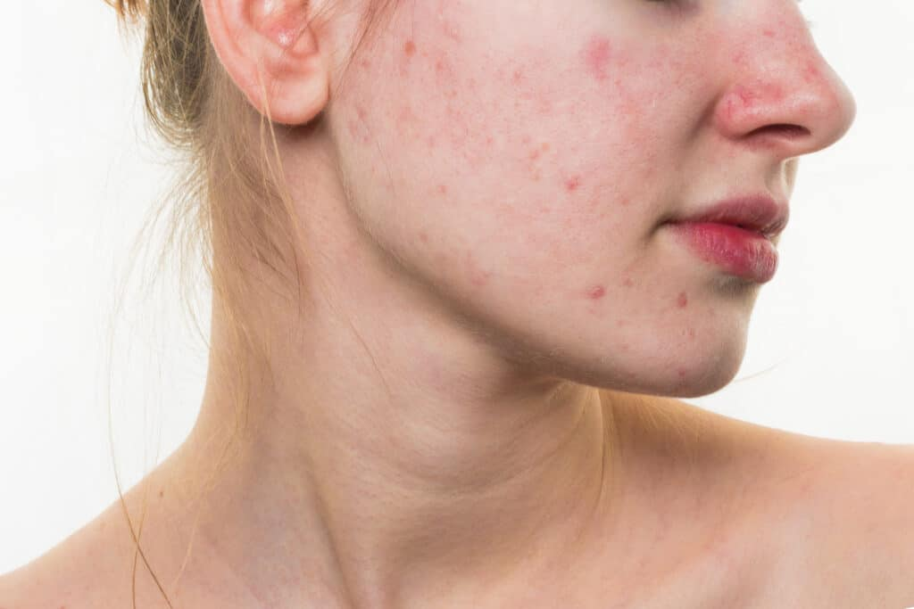 5 Causes of Tattoo Pimples and How To Get Rid Of Them