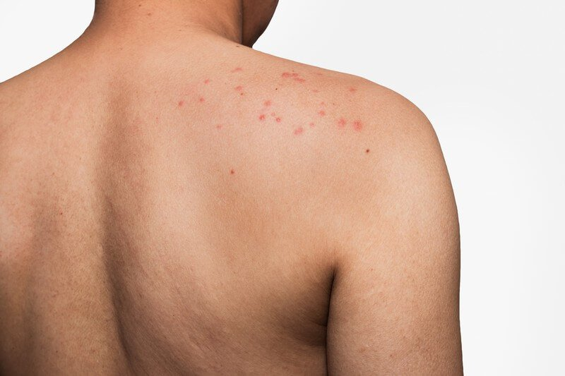 5 Causes of Tattoo Pimples and How To Get Rid Of Them5 Causes of Tattoo Pimples and How To Get Rid Of Them