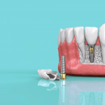 Top 3 Reasons Dental Implants are Increasingly Becoming Popular