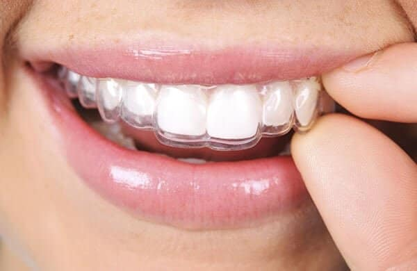 5 Tips To Make Sure that Your Invisalign Braces are Effective and Safe 1